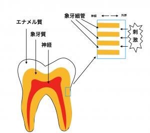 象牙質知覚過敏
