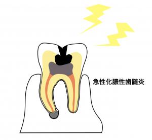 急性化膿性歯髄炎