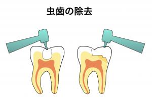 虫歯の除去