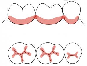 虫歯好発部位