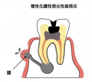 慢性根尖性歯周炎