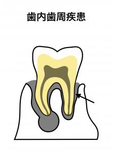 歯内歯周疾患